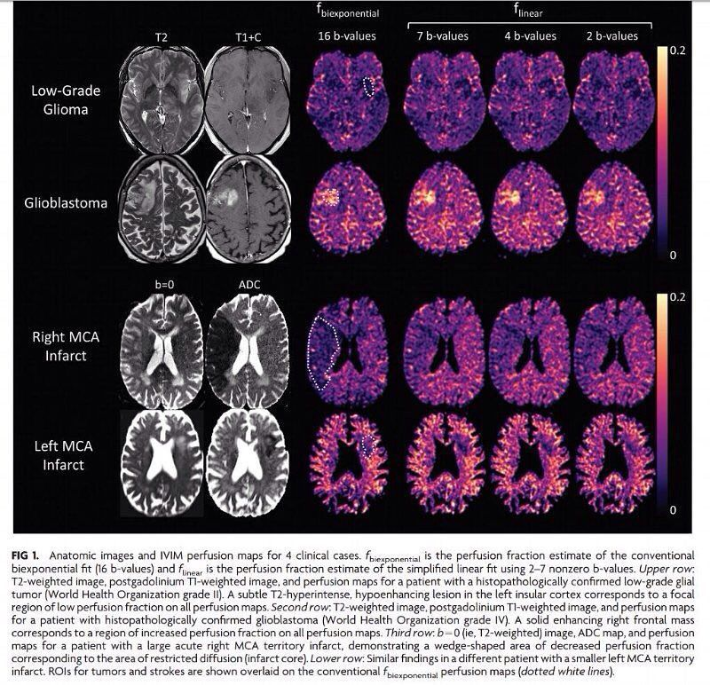 A Simplified Model for Intravoxel Incoherent Motion Perfusion Imaging of the Brain