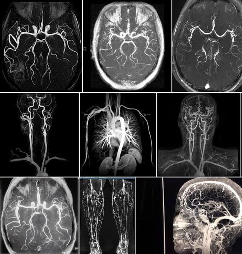 Magnetic Resonance Angiography (MRA)!