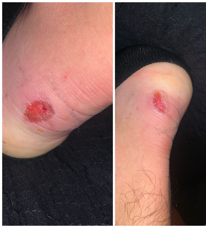 I went out with new boots in new year's eve, how can i cure this the to heal well?