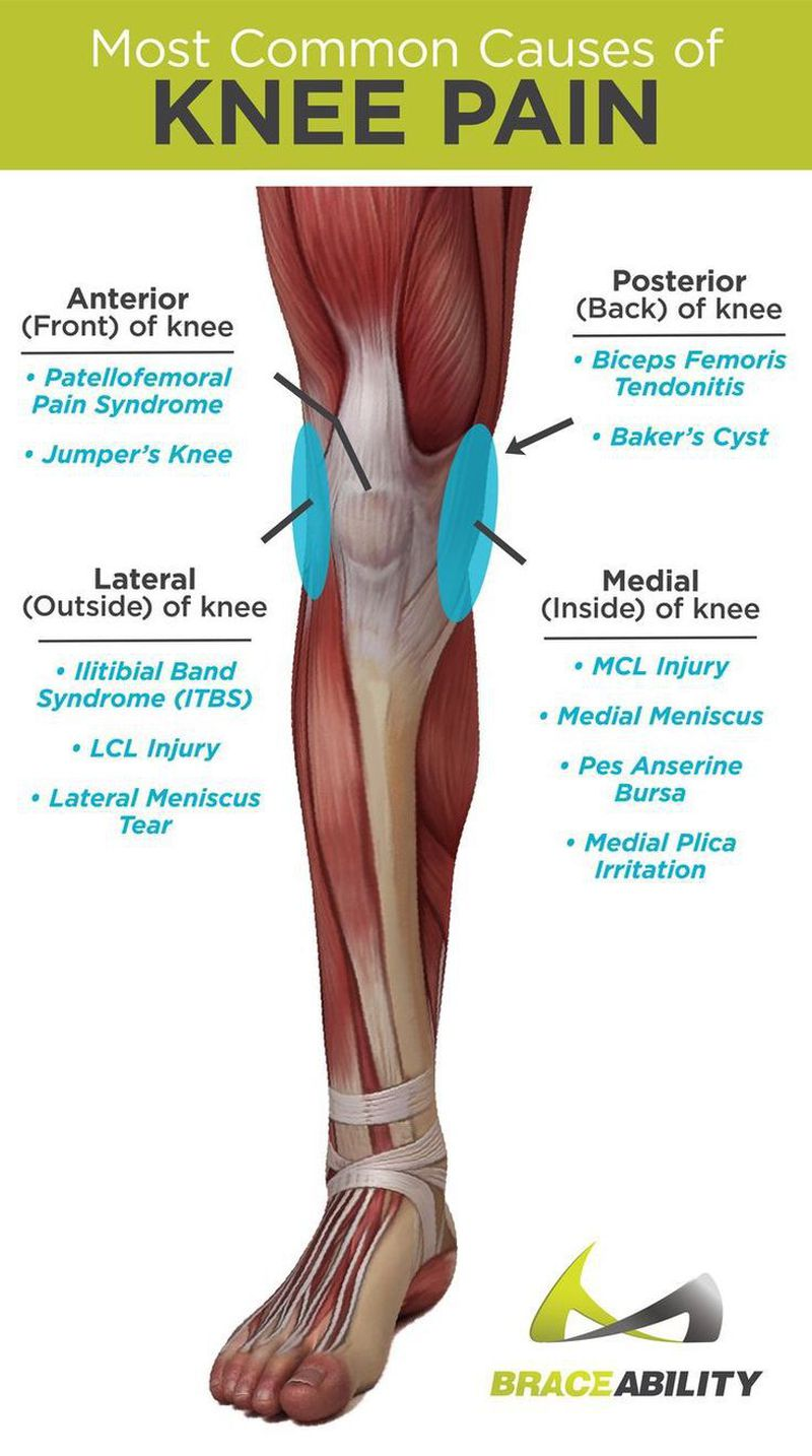 Pin on TRIGGER POINT THERAPY