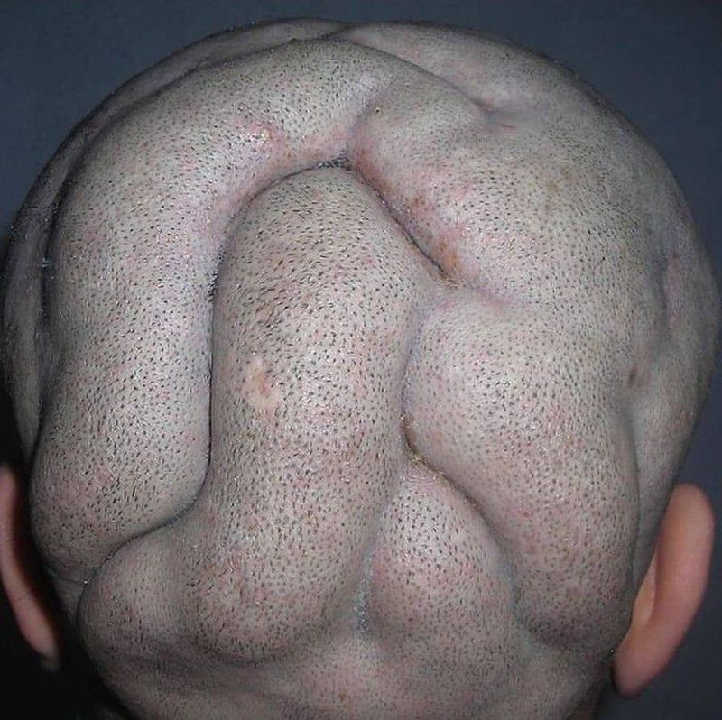 BULLDOG SCALP SYNDROME