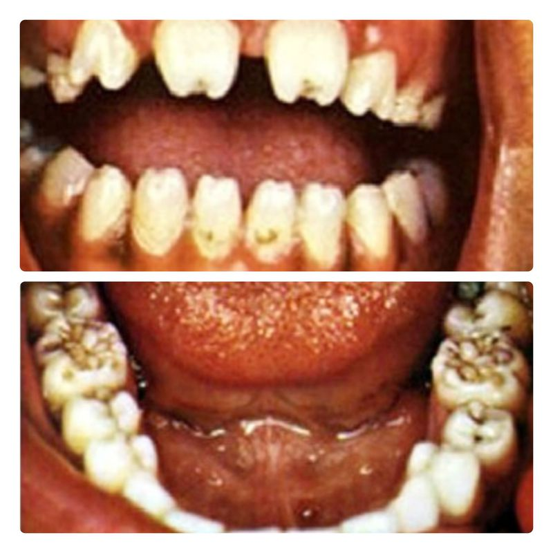 Tooth Deformities in Congenital Syphilis