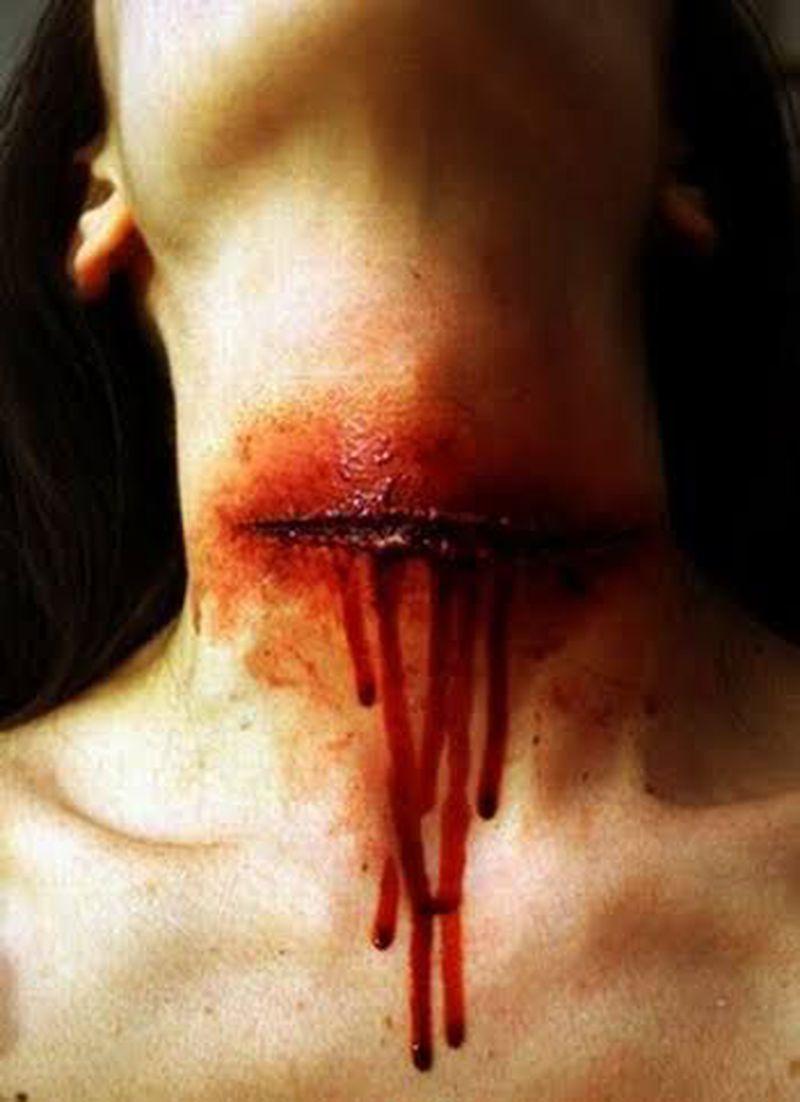 Cut Throat Injury- Suicidal or Homicidal?