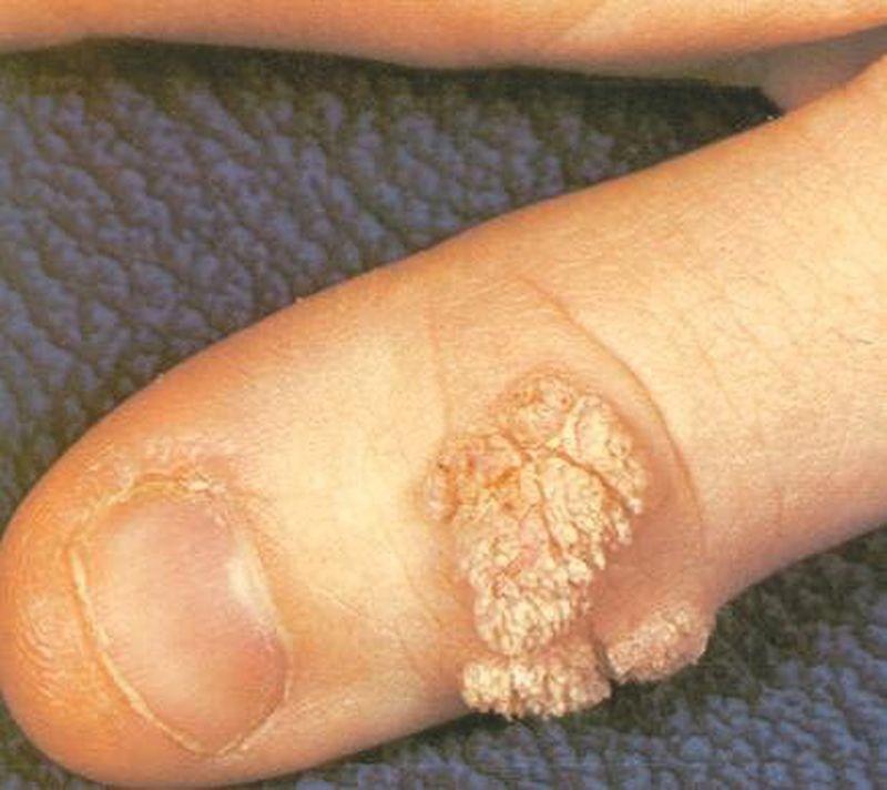 Verrcuae Vulgaris (Hand Wart)