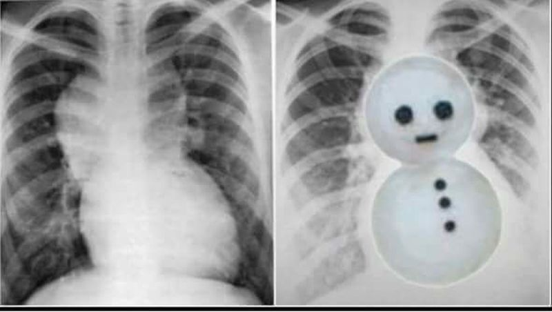 Snowman ⛄️ Appearance on x ray