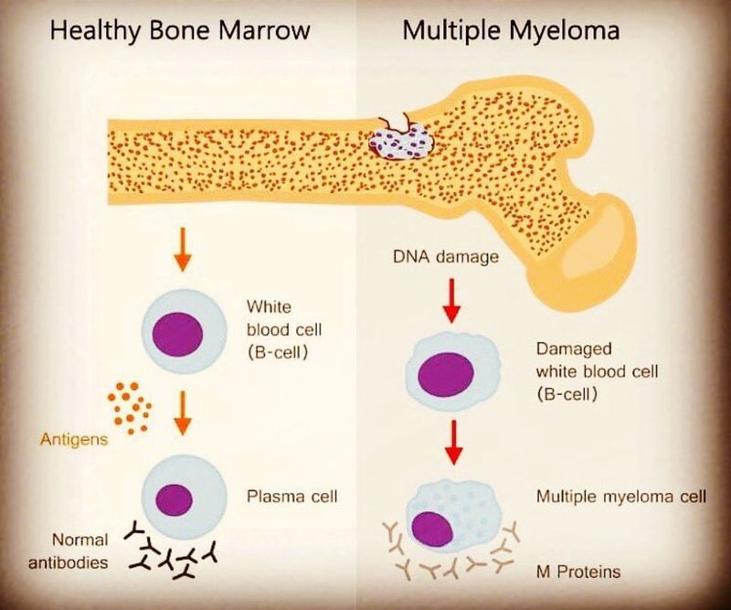 Health VS MM bone marrow