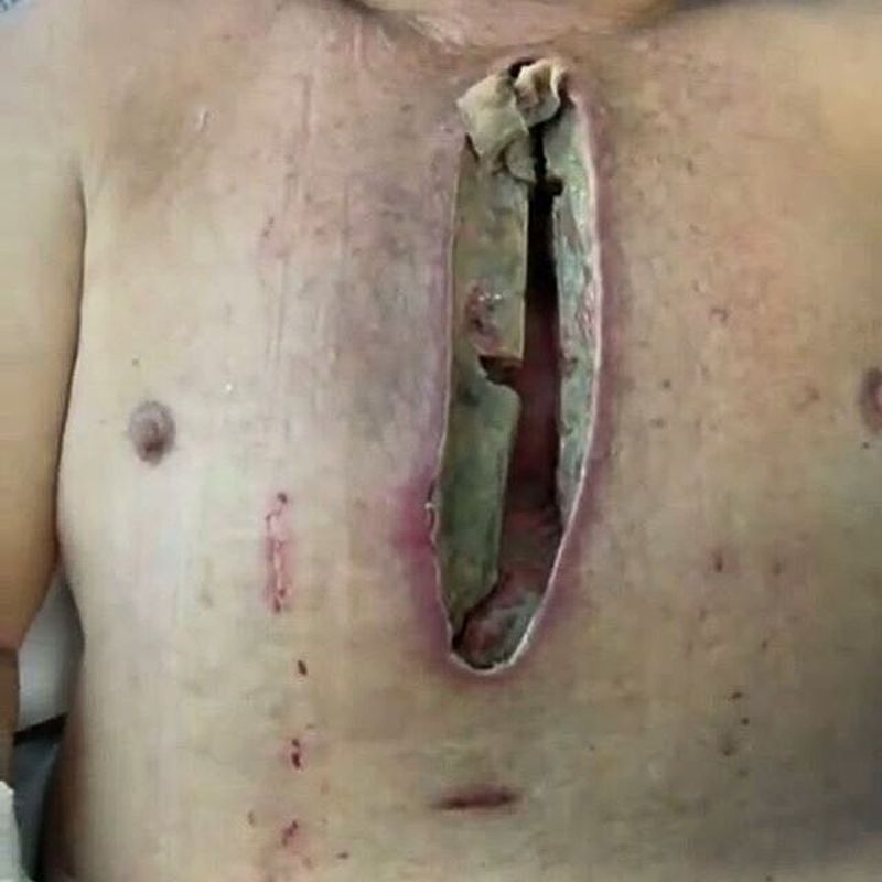 Sternum infection