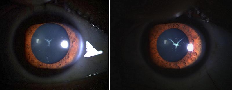 Sutural Cataract: A Rare Congenital Cataract