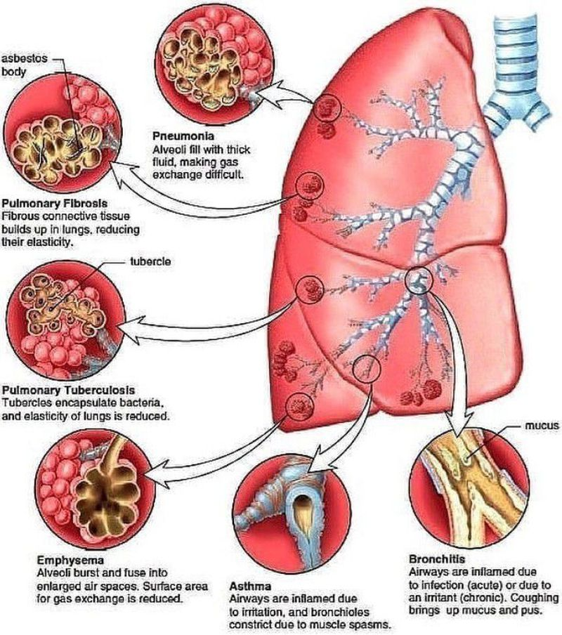 A quick review of lung diseases