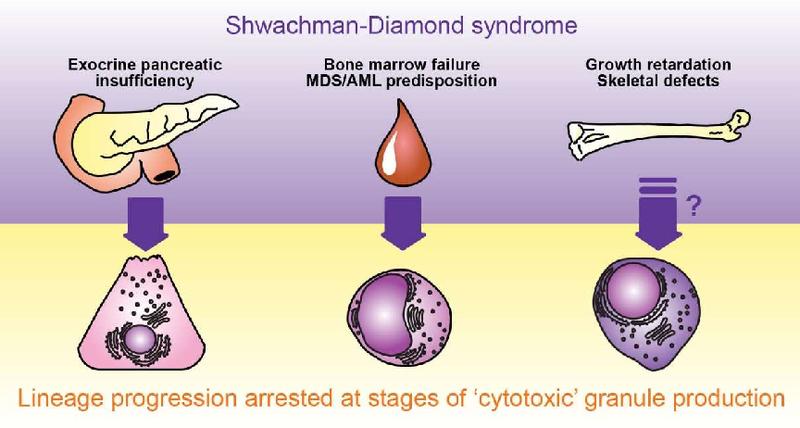 العنوان: PDF] Deconstructing Niche Contributions to Leukemogenesis: Modeling  Shwachman-Diamond Syndrome   Semantic Scholar