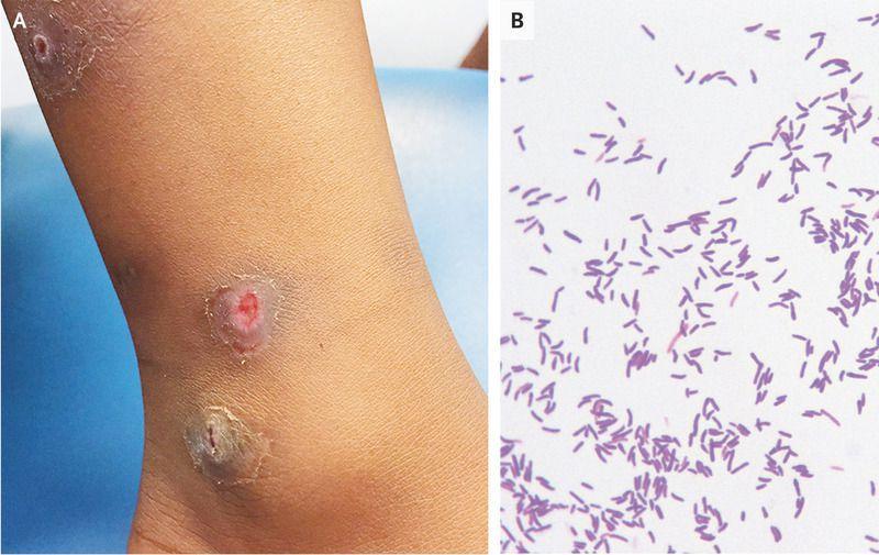 Cutaneous Diphtheria