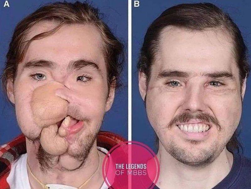 Facial transplantation