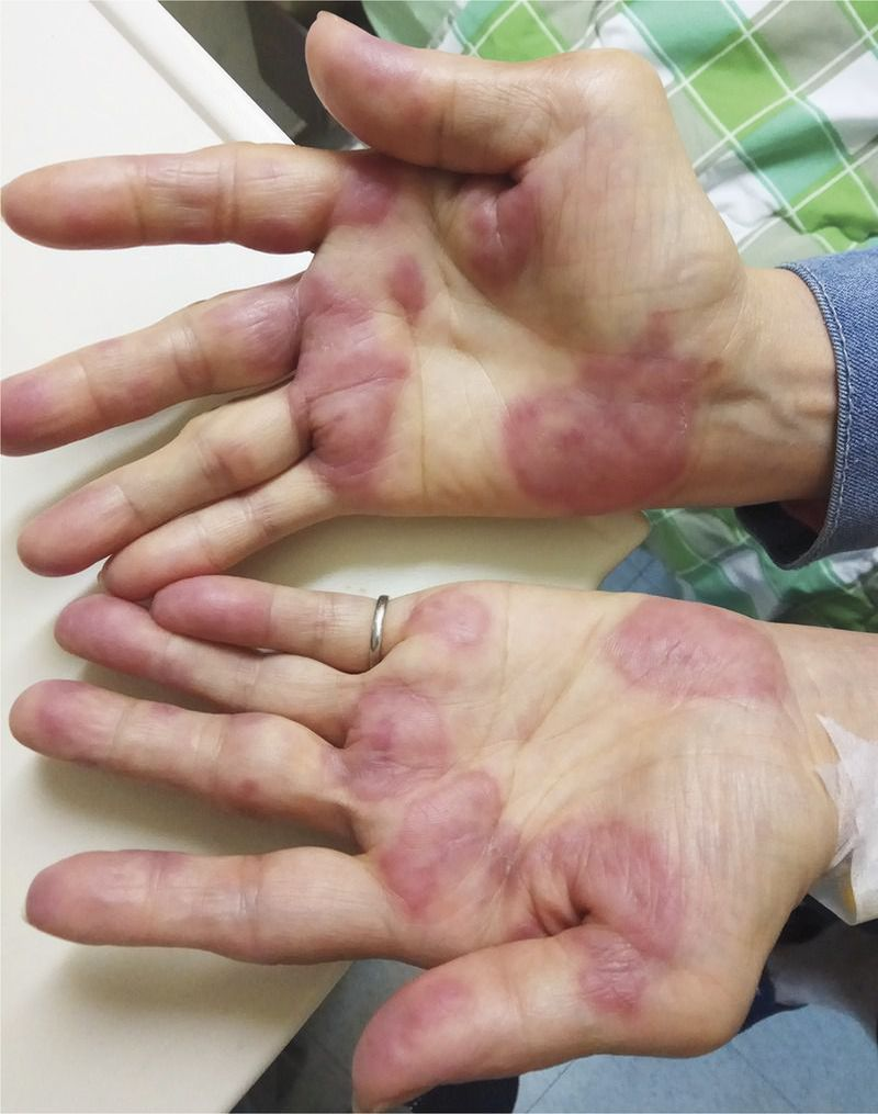 Sweet's Syndrome in a Patient with Rheumatoid Arthritis
