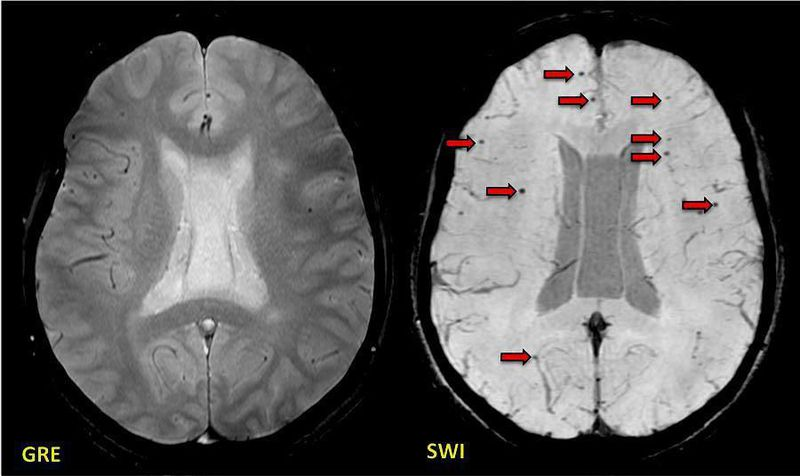 Post-traumatic brain injury showing many more axonal microhemorrhages (arrows) on SWI than on GRE
