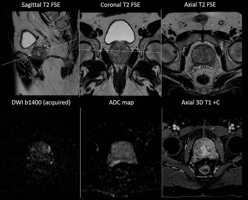 Prostate MR Imaging in a patient with elevated PSA