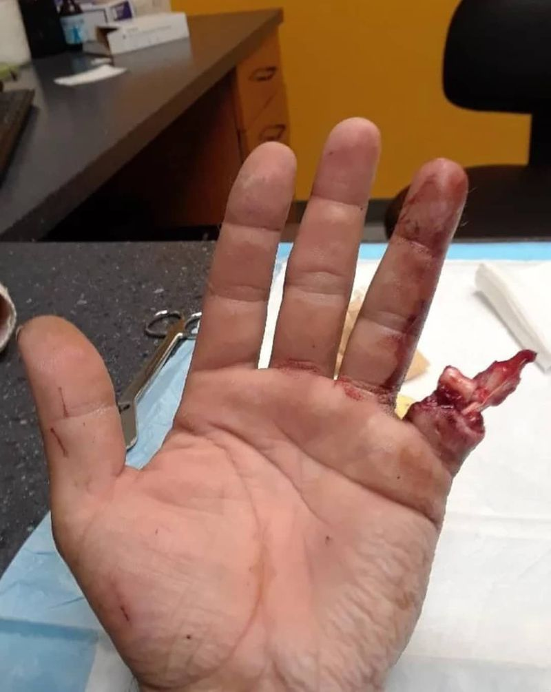 ⚠️ Finger amputation after a drill accident at work!