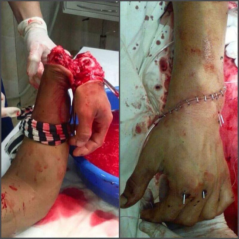 Rearrangement of hand