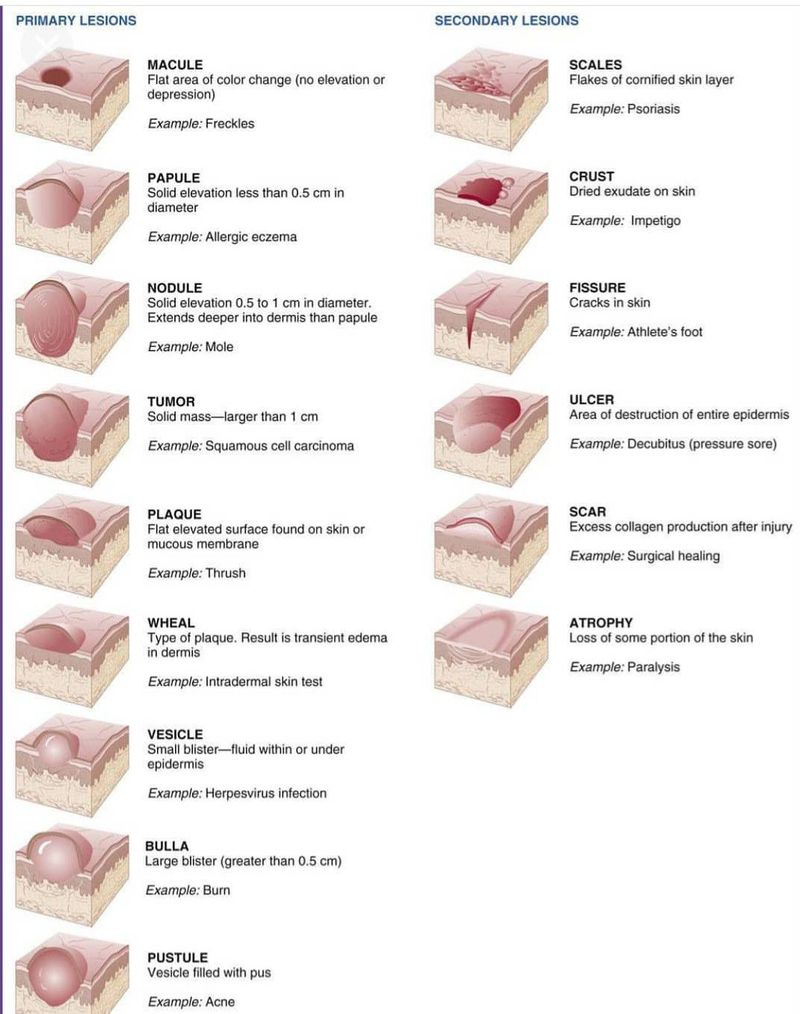 Primary and secondary lesions.