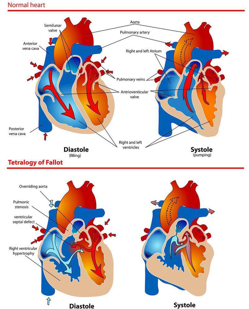 Healthy heart vs. Tetralogy of Fallot