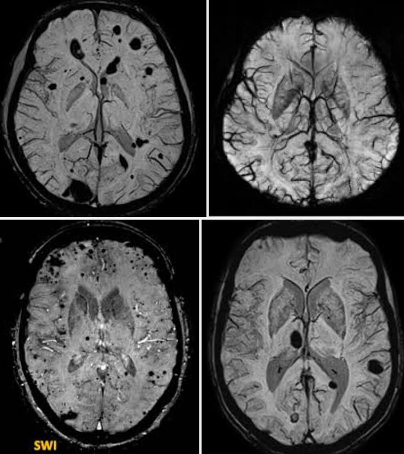 Susceptibility-weighted imaging (SWI)