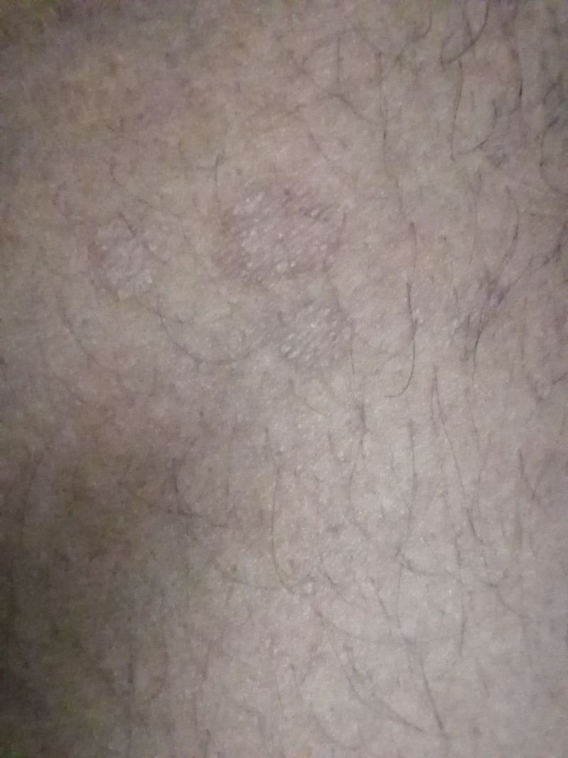 A young boy of 25 years old has this kind of scars on body. What are your opinion and treatment except fluconazole, cetrizine etc.