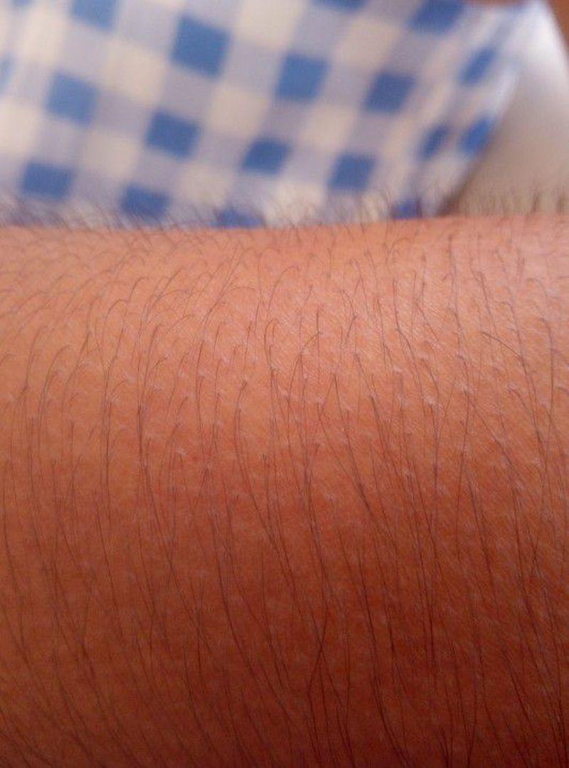 Piloerection of the Arm