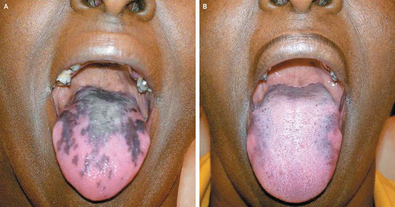 Chemotherapy-Induced Hyperpigmentation of the Tongue