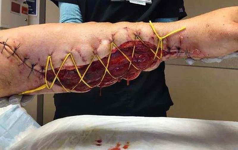 Upper limb fasciotomy in acute compartment syndrome!!