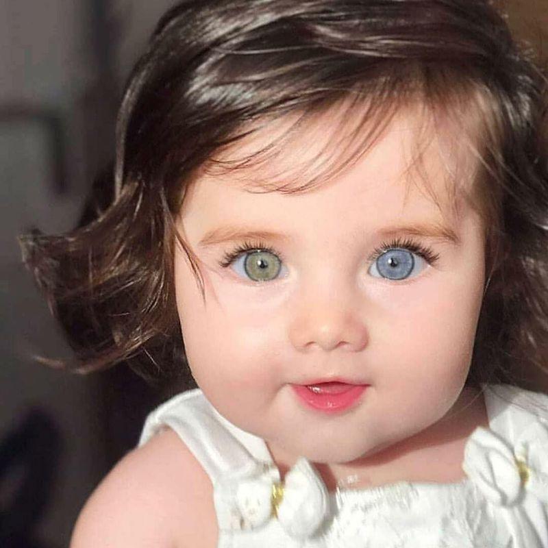 Cutest mutation ever 😍 Hetrochromia