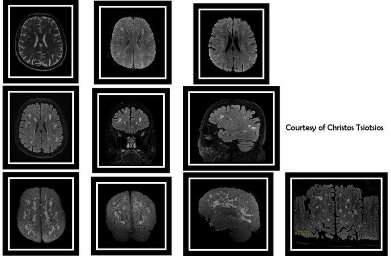 MR Imaging of chronic microvascular ischemic disease