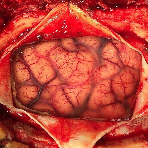 Living human brain during a neurosurgery