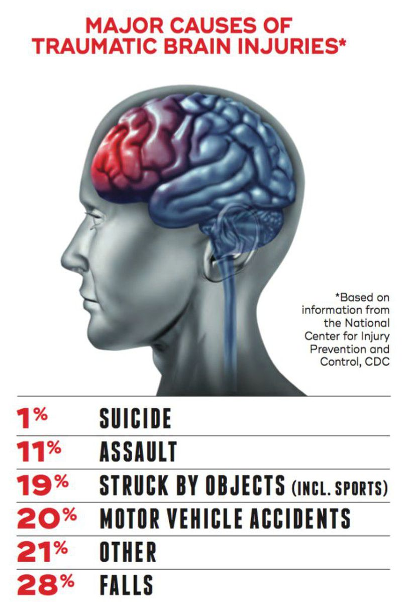Major causes of traumatic brain injury
