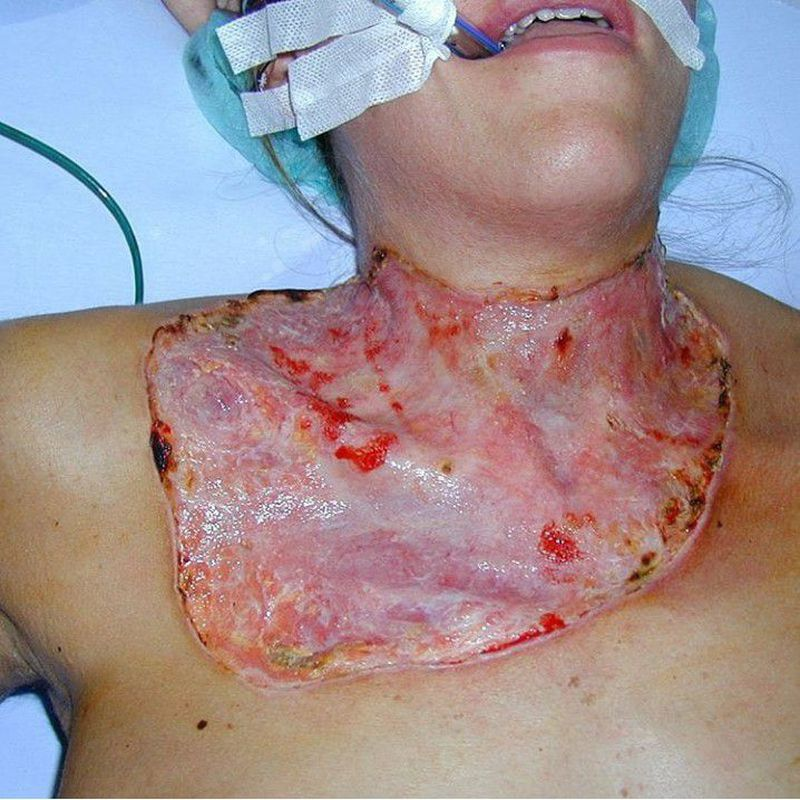 This is a 29-year-old previously healthy woman with pyoderma gangrenosum immediately after thyroidectomy.