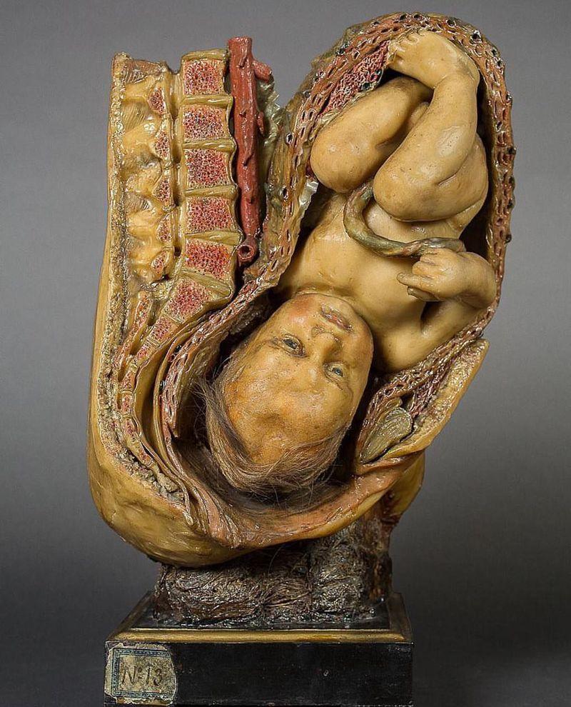 Fetus waxy model