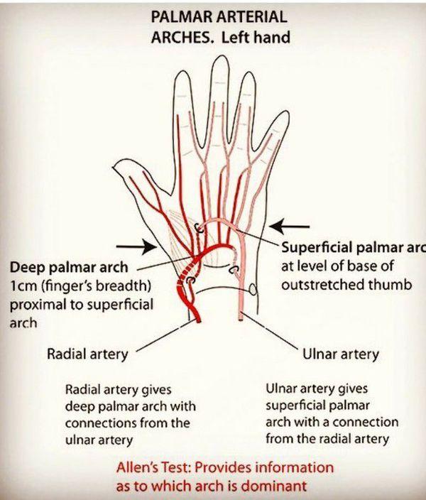 deep palmar artery - 600×704