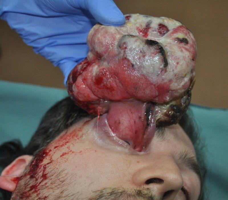 Amazing medical case :O