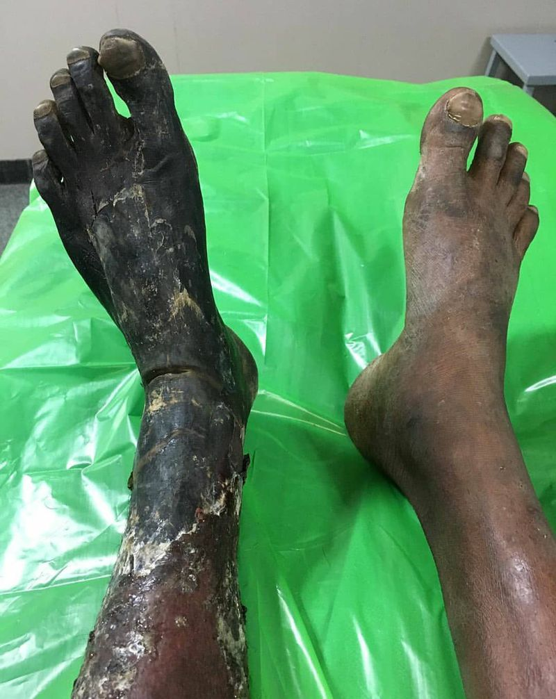Patient suffering from dry gangrene of his left foot.