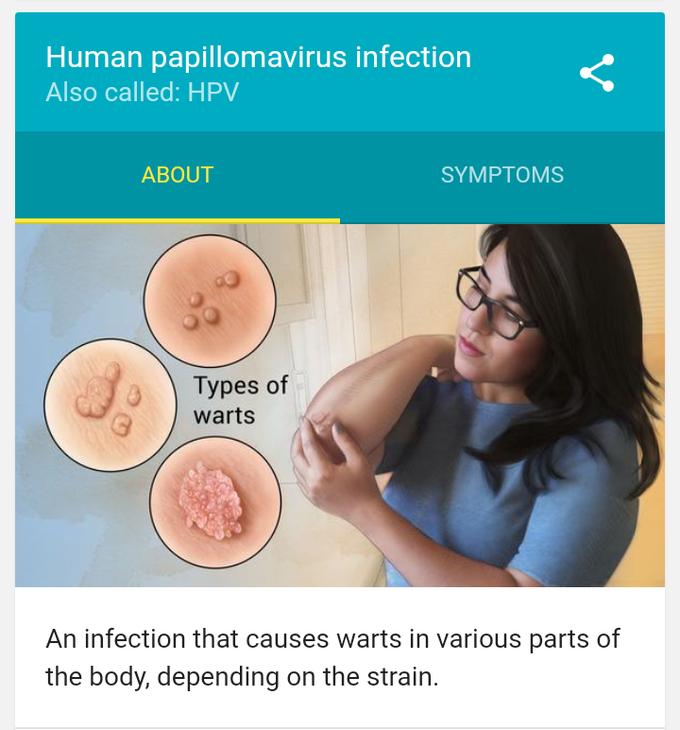 medicină veterinară pentru paraziți laryngeal papillomas prognosis