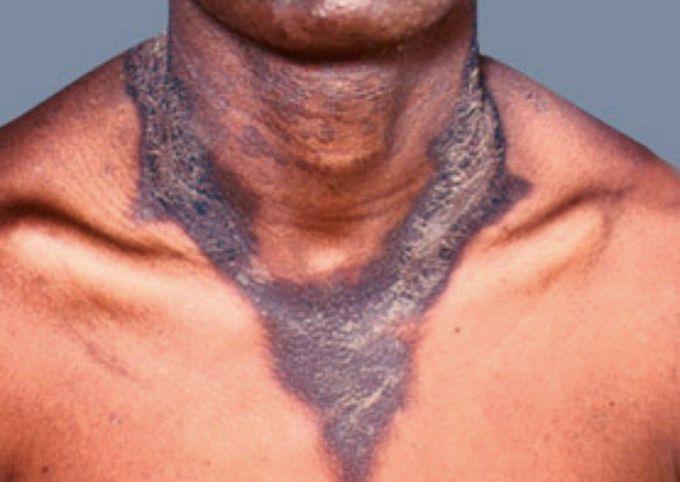 Casal Necklace