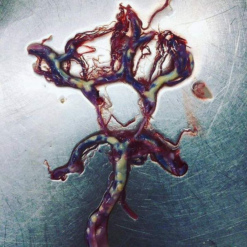 Atherosclerosis   circle of willis leads to ischemic stroke