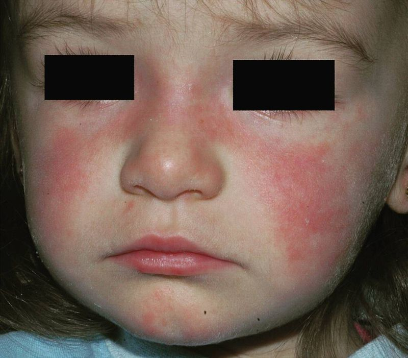 Butterfly (Malar) rash