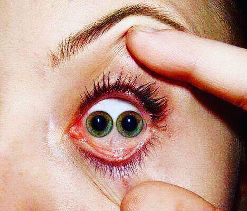 Double-Eyed Man