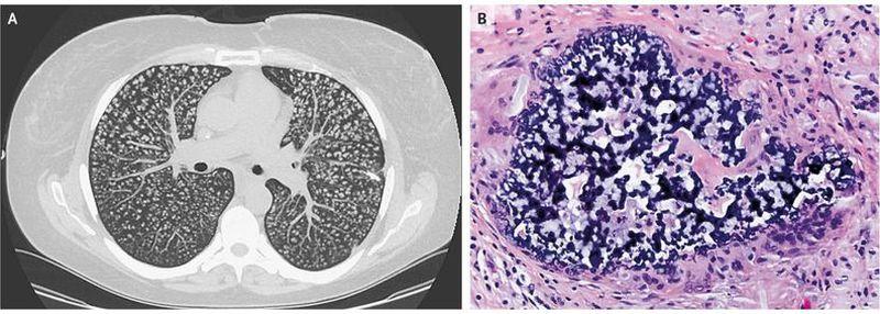 Pulmonary Foreign-Body Granulomatosis