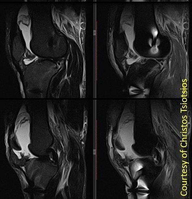 Male patient with metal screws for ACL reconstruction