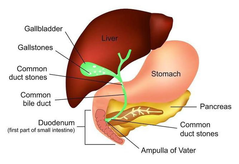 Cholelithiasis ( Cholecystitis) :  Symptoms, Causes,  Complications and Treatment by Nursesnote