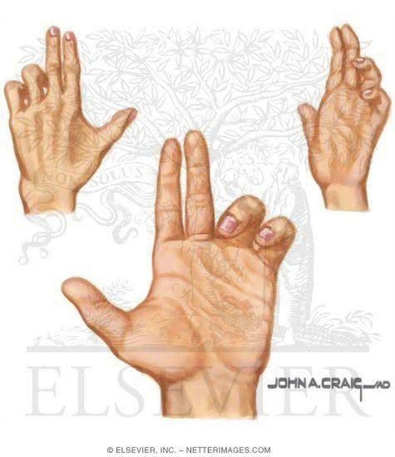 Hand of Benediction- Median Nerve Injury