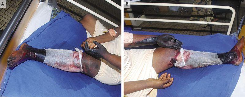 Simultaneous Gangrene of Both Left Extremities