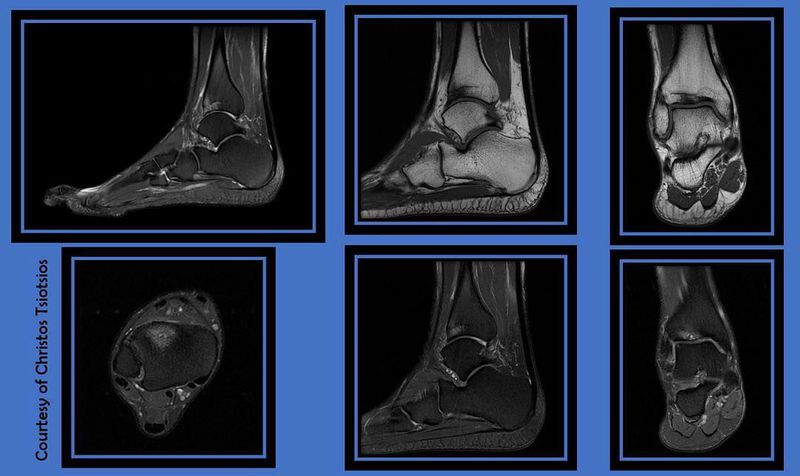 High resolution ankle MR Imaging