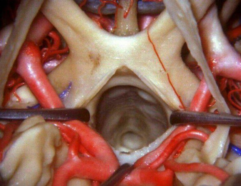 Close up view of Optic chiasma