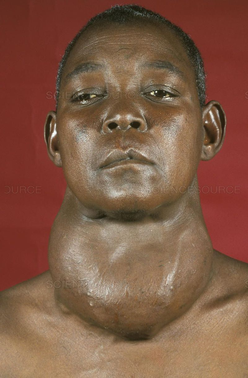 LIST OF THE COMPLICATIONS OF THE HYPOTHYROIDISM, This picture shows one of the complications of the hypothyroidism complications and its the goiter which is the ABNORMAL ENLARGEMENT OF THYROID GLAND)